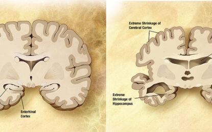 Само 1% от новите лекарствата за Алцхаймер постигат резултат