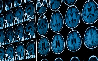 """Учени откриха """"слабото място"""" за Алцхаймер"""