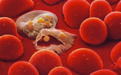 Учени използват холограми, за да открият малария в кръвта