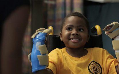Лекари в САЩ трансплантираха две ръце на дете