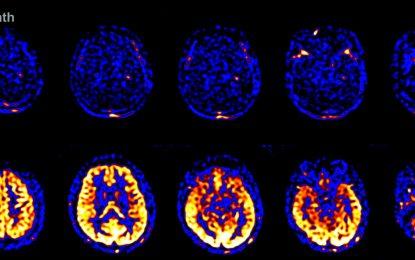 US фирма планира да съживи мозък