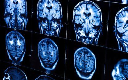 Религията е оформила структурата на мозъка ни